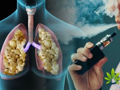Does vaping lead to popcorn lung disease? Here is what you need to know.
